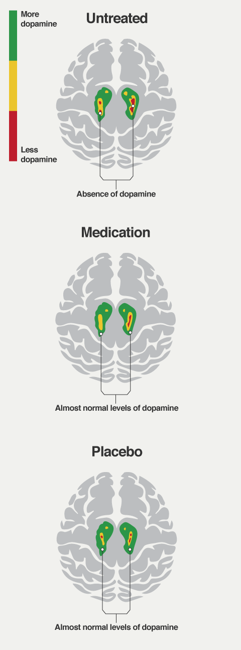 Illustration adapted from a representative Parkinson's patient's brain scan that showed a placebo response in Lidstone et al., Arch Gen Psychiatry, 2010.