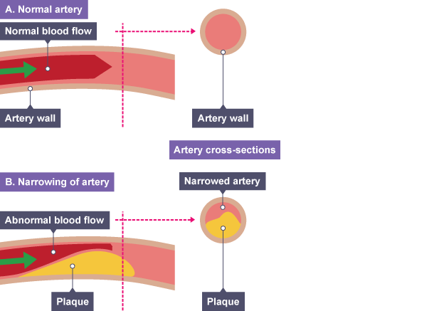 Bbc bitesize gcse biology the circulatory system revision 6 coronary heart disease ccuart Image collections