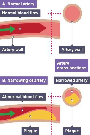 BBC Bitesize - GCSE Biology - The circulatory system ...