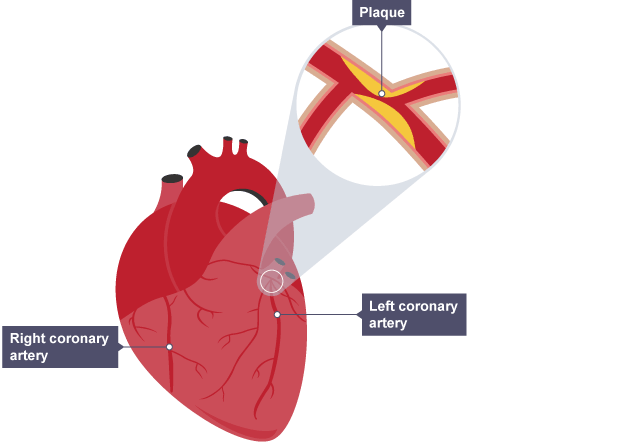 Bbc gcse bitesize biology 3292986 vdyufo ks3 biology bbc bitesize homeworknowgarfieldxfc2com heart diagram with coronary arteries image collections ccuart