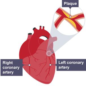 Alveoli diagram gcse ccuart Gallery